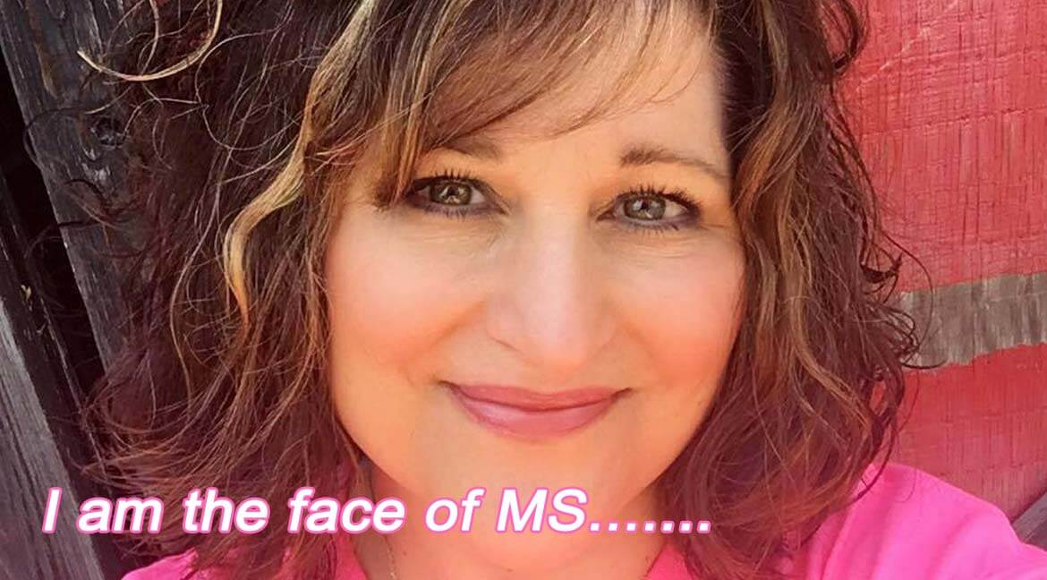 I am the Face of MS
